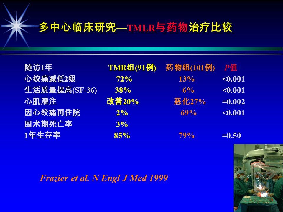 TMLR + Stem Cells