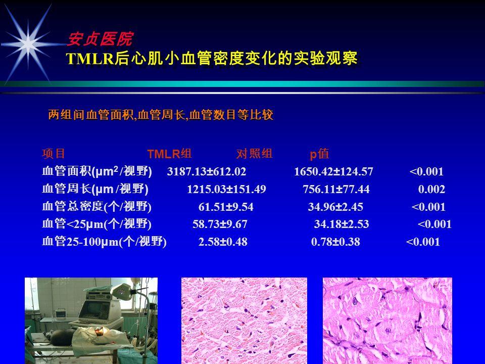 ( ) ( ) ä Kohomoto TMR 2-3 2 DeGrado TMR 6 7 ä Yamamoto TMR 1.4 ä Horvath TMR VEGFmRNA ä Horvath TMR VEGFmRNA ä CO 2 VEGF FGF TGF- ß, ä CO 2 VEGF FGF TGF- ß,