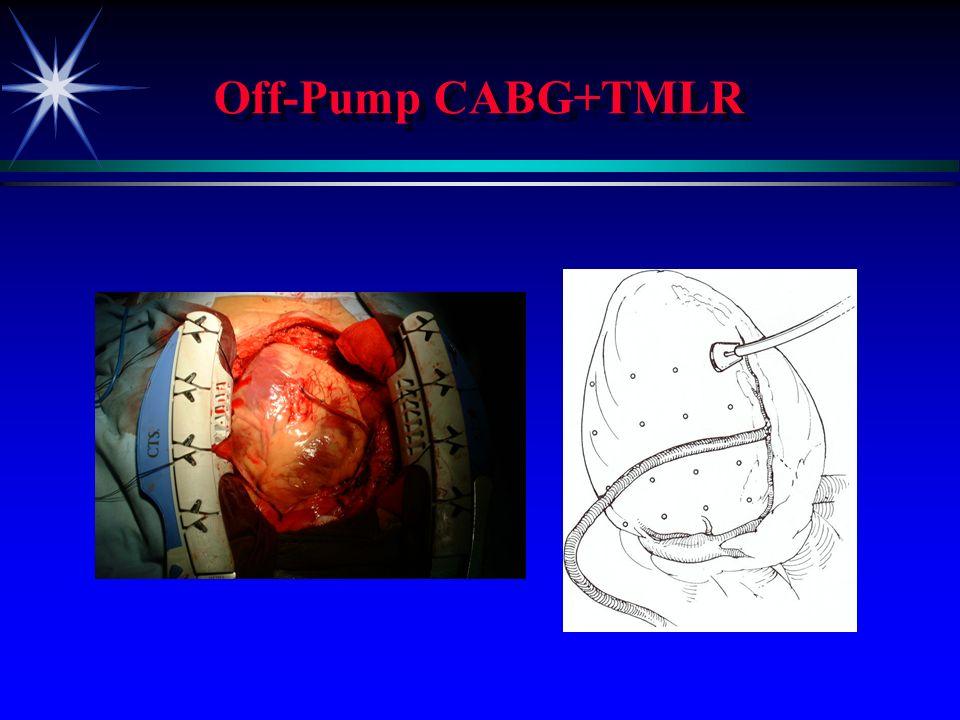 STS TMLR+CABG ä ä A CABG CABG 1 1 2 2 3 3 ä ä B CABG CABG 1 1 2 2 3 3 ä CABG CABG