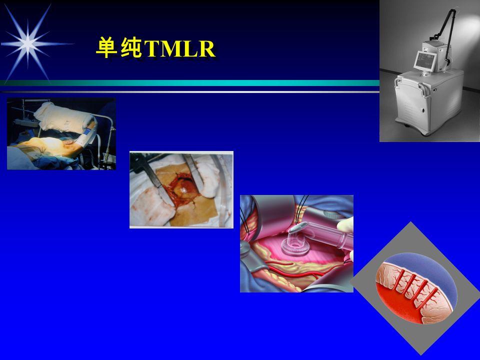 TMLR ä ä, ä ä CABG + TMLR ä ä TMLR. ä ä TMLR + GENE (VEGF, bFGF) ä ä TMLR + Stem Cell