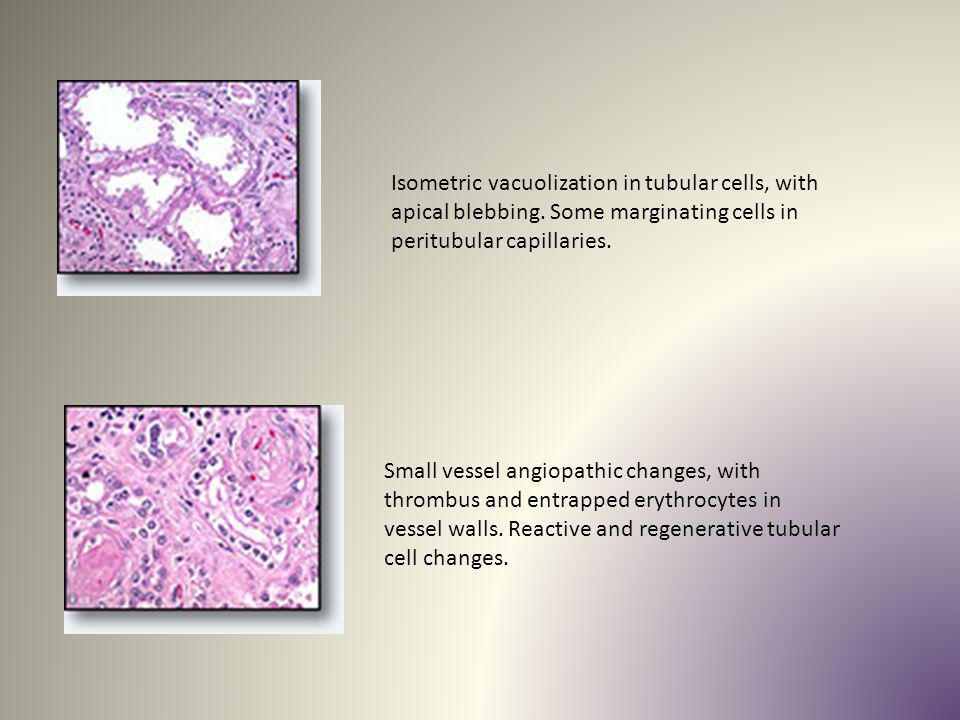 Isometric vacuolization in tubular cells, with apical blebbing. Some marginating cells in peritubular capillaries. Small vessel angiopathic changes, w