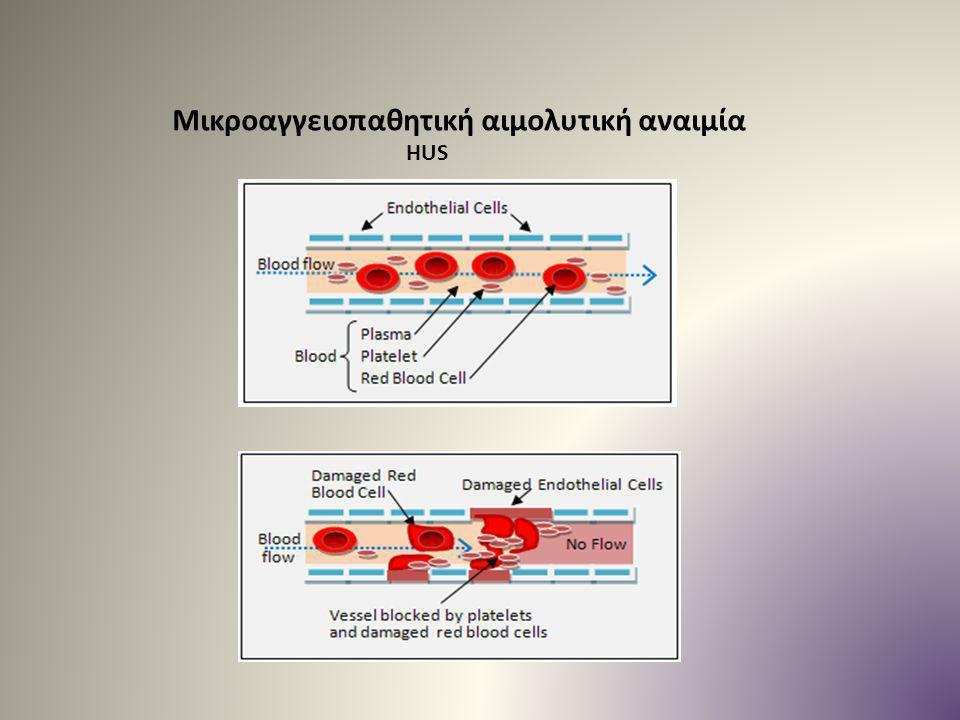 Μικροαγγειοπαθητική αιμολυτική αναιμία HUS