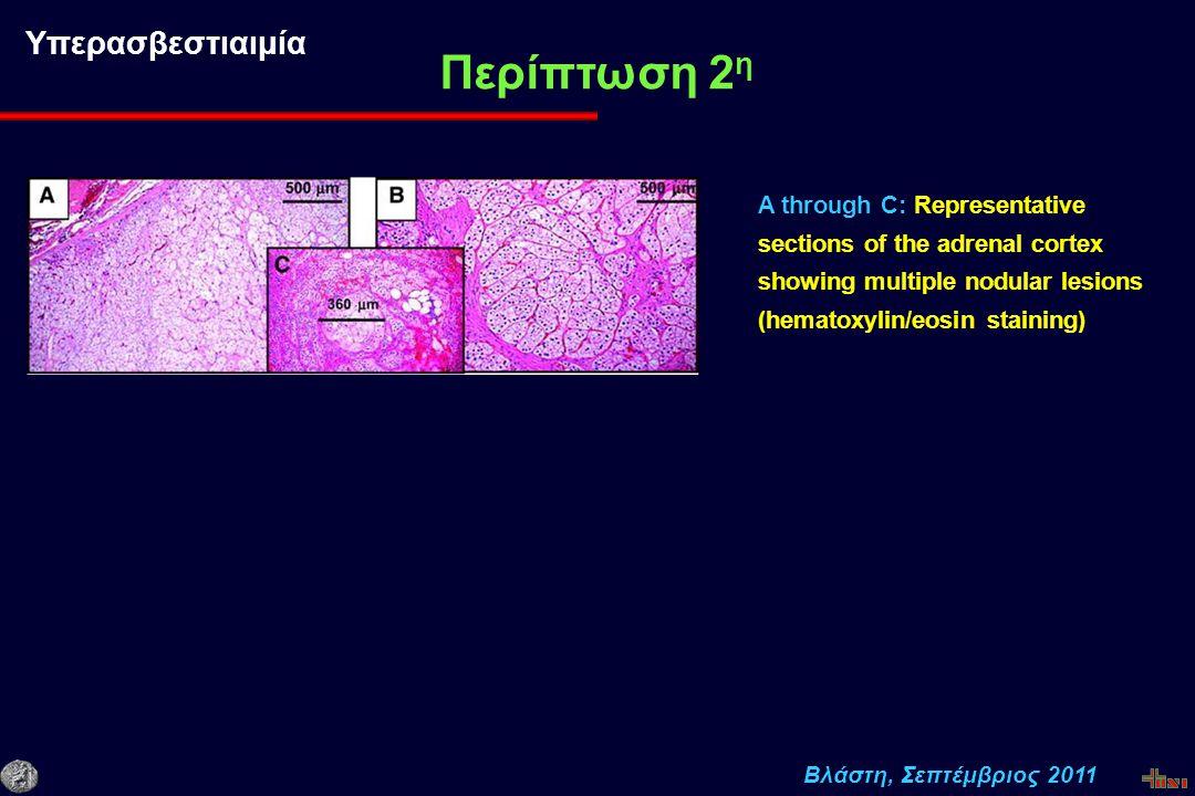 Βλάστη, Σεπτέμβριος 2011 Περίπτωση 2 η Υπερασβεστιαιμία A through C: Representative sections of the adrenal cortex showing multiple nodular lesions (hematoxylin/eosin staining)