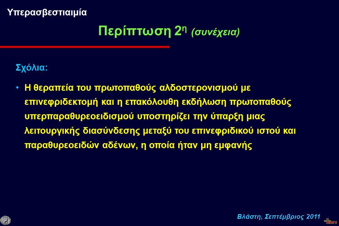 Βλάστη, Σεπτέμβριος 2011 Περίπτωση 2 η (συνέχεια) Υπερασβεστιαιμία Σχόλια: Η θεραπεία του πρωτοπαθούς αλδοστερονισμού με επινεφριδεκτομή και η επακόλουθη εκδήλωση πρωτοπαθούς υπερπαραθυρεοειδισμού υποστηρίζει την ύπαρξη μιας λειτουργικής διασύνδεσης μεταξύ του επινεφριδικού ιστού και παραθυρεοειδών αδένων, η οποία ήταν μη εμφανής