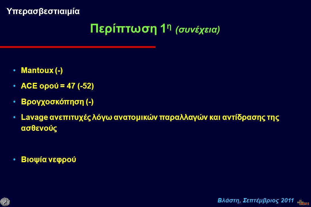 Βλάστη, Σεπτέμβριος 2011 Mantoux (-) ACE ορού = 47 (-52) Βρογχοσκόπηση (-) Lavage ανεπιτυχές λόγω ανατομικών παραλλαγών και αντίδρασης της ασθενούς Βιοψία νεφρού Περίπτωση 1 η (συνέχεια) Υπερασβεστιαιμία