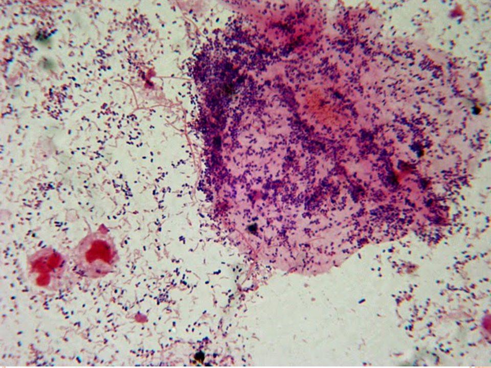Χρώση Gram Βιολογικά υγρά (πλευριτικό, ασκιτικό, αρθρικό, ΕΝΥ) Πτύελα και λοιπά δείγματα αναπνευστικού συστήματος Πύα / τραύματα Ουρηθρικό έκκριμα (διαγνωστική γονοκοκκικής ουρηθρίτιδας) Κολπικά υγρά (μύκητες, clue cells)