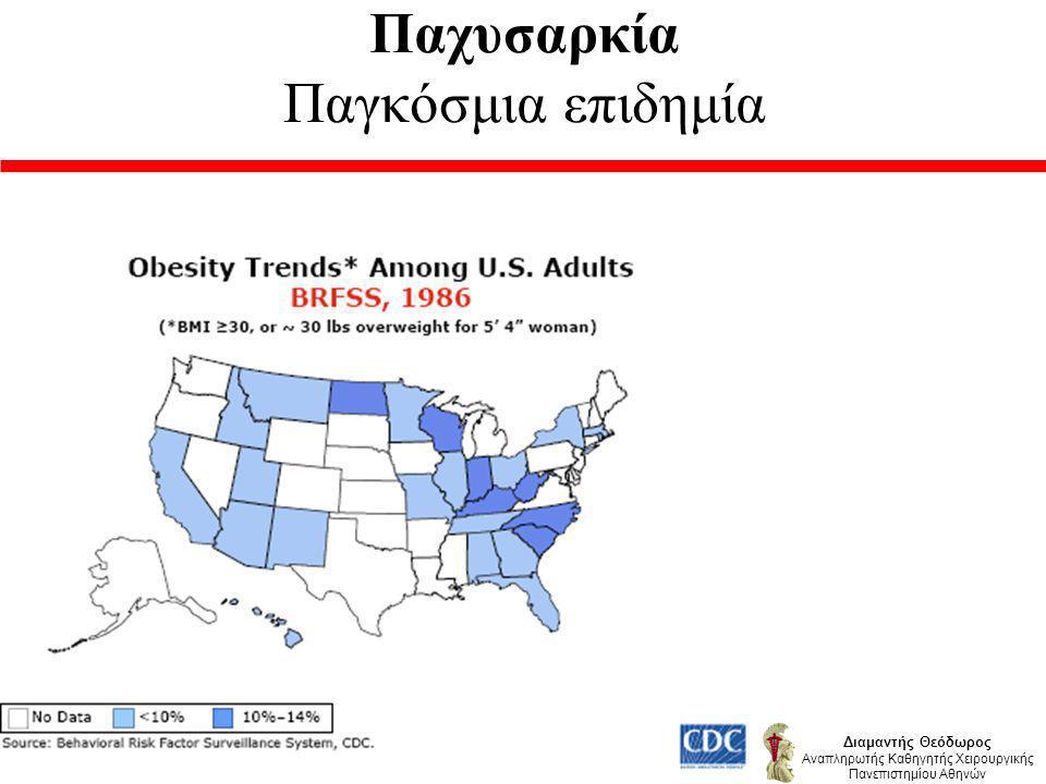 Γιατί Χειρουργική Θεραπεία Νοσογόνου Παχυσαρκίας ; Διαμαντής Θεόδωρος Αναπληρωτής Καθηγητής Χειρουργικής Πανεπιστημίου Αθηνών Η συντηρητική θεραπεία αποτυγχάνει Η άσκηση δεν φθάνει !