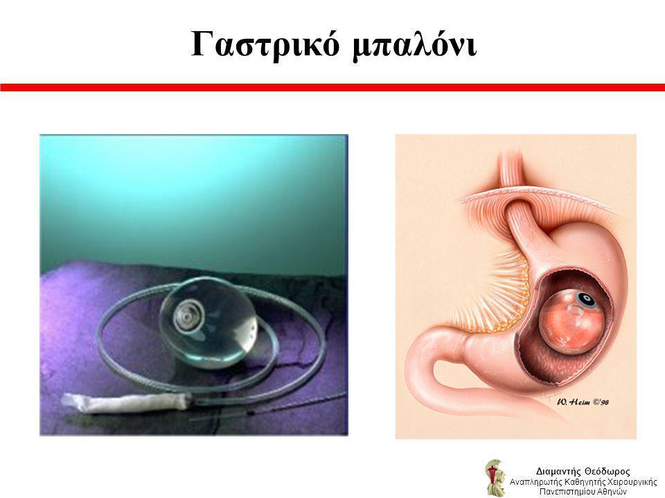 Γαστρικό μπαλόνι Διαμαντής Θεόδωρος Αναπληρωτής Καθηγητής Χειρουργικής Πανεπιστημίου Αθηνών
