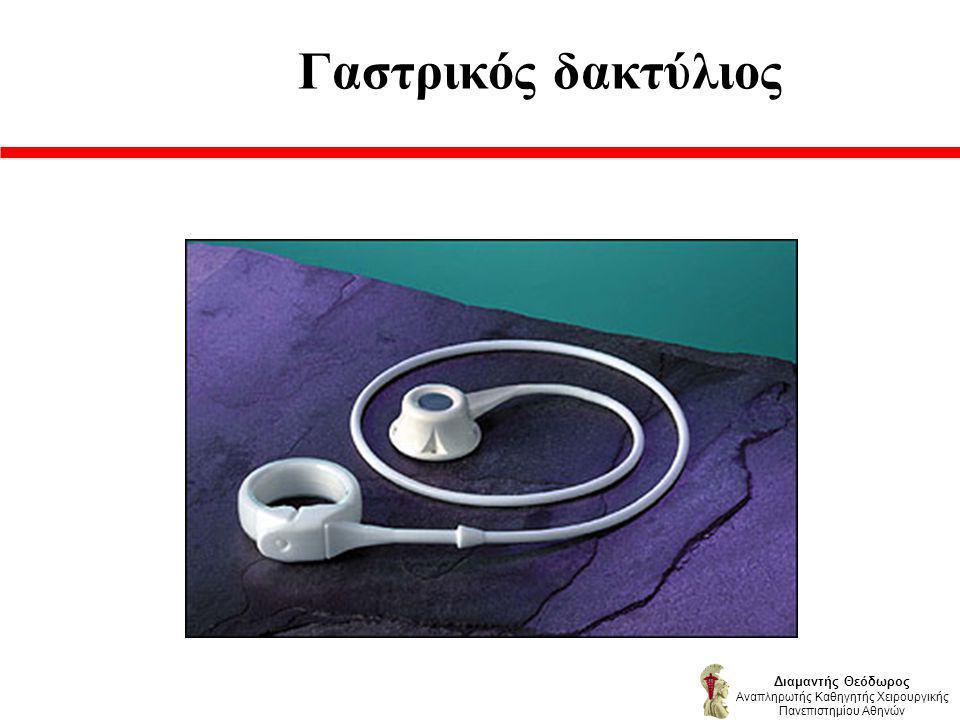 Γαστρικός δακτύλιος Διαμαντής Θεόδωρος Αναπληρωτής Καθηγητής Χειρουργικής Πανεπιστημίου Αθηνών