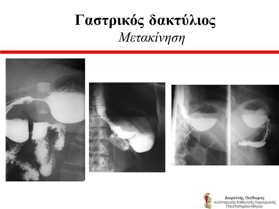 Γαστρικός δακτύλιος Μετακίνηση Διαμαντής Θεόδωρος Αναπληρωτής Καθηγητής Χειρουργικής Πανεπιστημίου Αθηνών