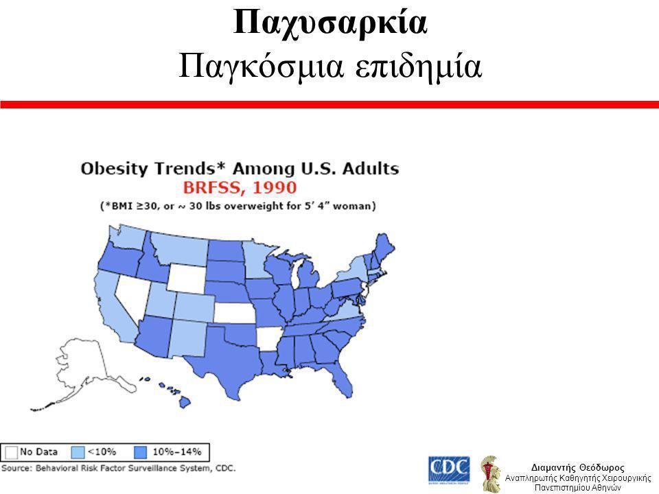 Παχυσαρκία Παγκόσμια επιδημία Διαμαντής Θεόδωρος Αναπληρωτής Καθηγητής Χειρουργικής Πανεπιστημίου Αθηνών Κύρια αιτία : Τρόπος ζωής