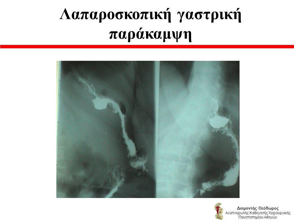 Λαπαροσκοπική γαστρική παράκαμψη Διαμαντής Θεόδωρος Αναπληρωτής Καθηγητής Χειρουργικής Πανεπιστημίου Αθηνών