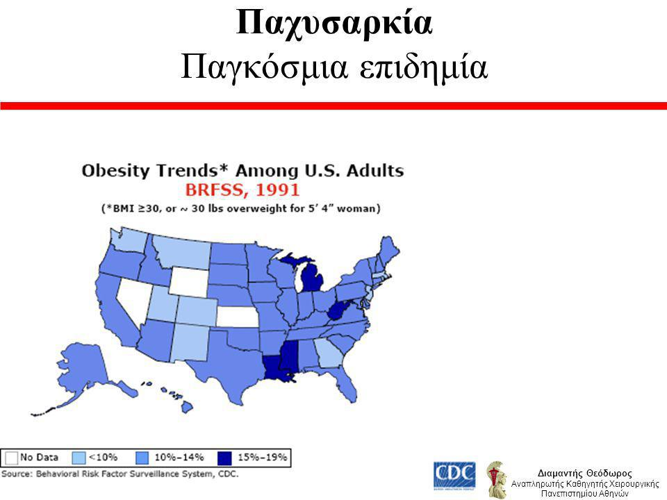 Παχυσαρκία Παγκόσμια επιδημία Διαμαντής Θεόδωρος Αναπληρωτής Καθηγητής Χειρουργικής Πανεπιστημίου Αθηνών