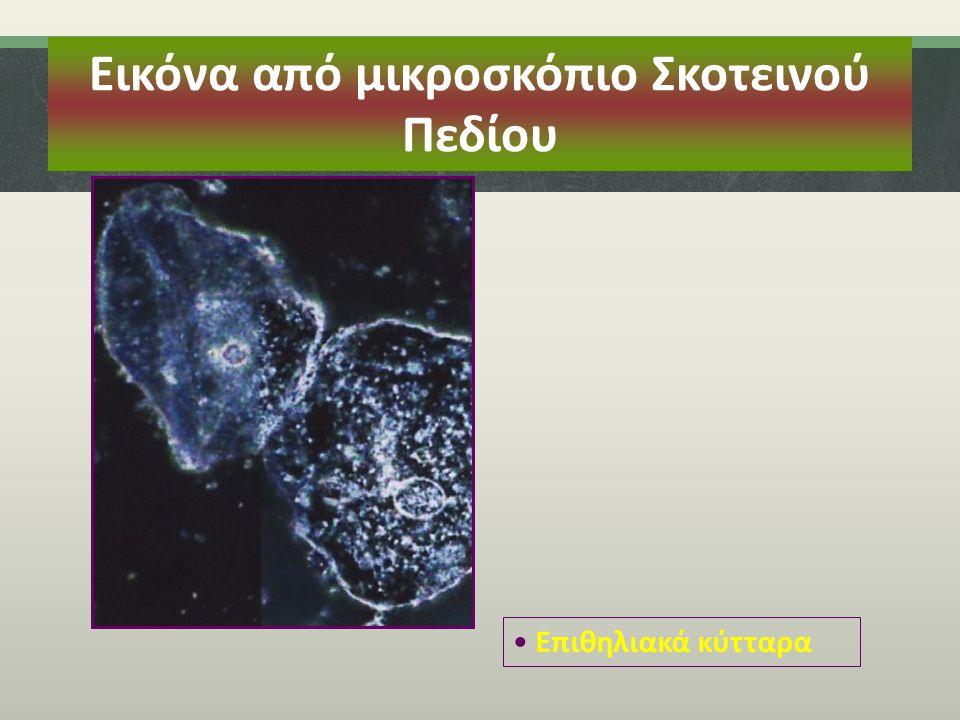 Εικόνα από μικροσκόπιο Σκοτεινού Πεδίου Επιθηλιακά κύτταρα