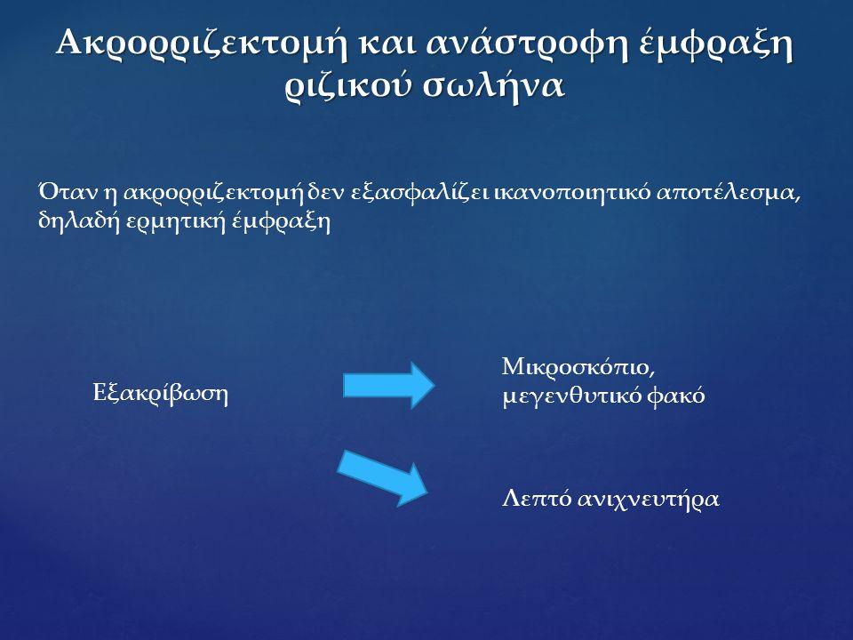 Ακρορριζεκτομή και ανάστροφη έμφραξη ριζικού σωλήνα Όταν η ακρορριζεκτομή δεν εξασφαλίζει ικανοποιητικό αποτέλεσμα, δηλαδή ερμητική έμφραξη Εξακρίβωση