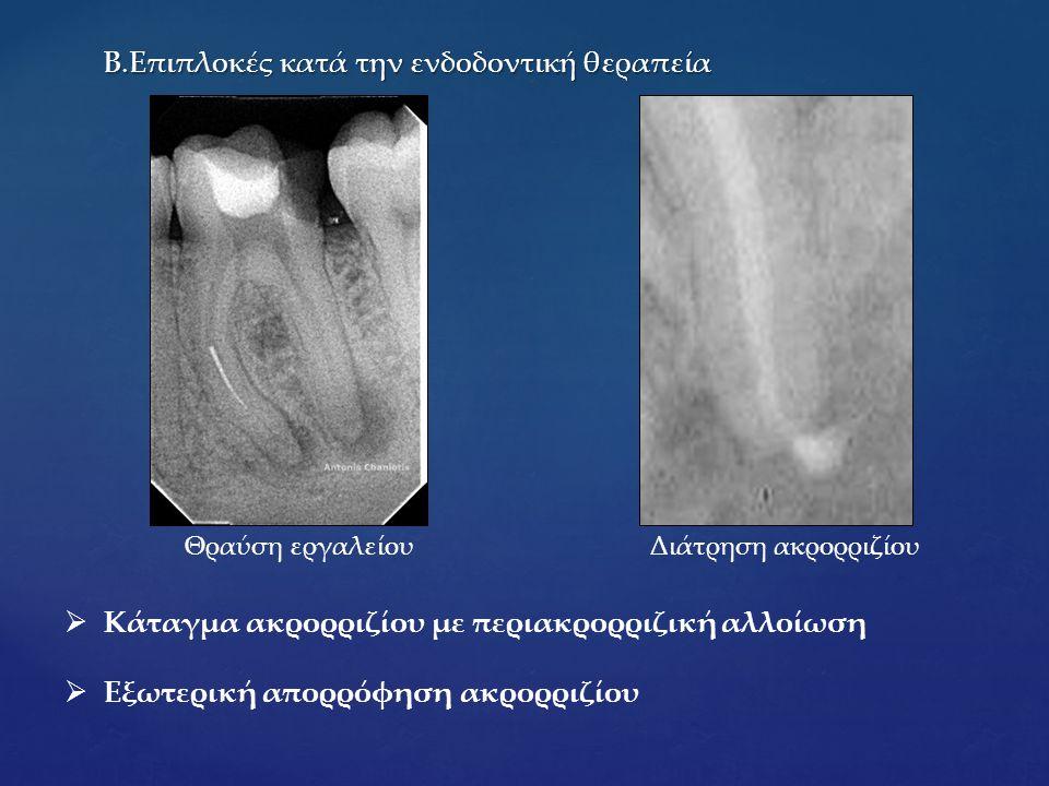 Β.Επιπλοκές κατά την ενδοδοντική θεραπεία Β.Επιπλοκές κατά την ενδοδοντική θεραπεία Θραύση εργαλείουΔιάτρηση ακρορριζίου  Κάταγμα ακρορριζίου με περι