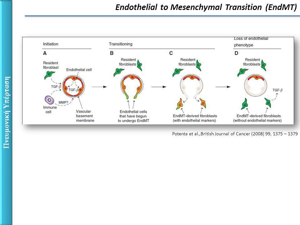 Potenta et al.,British Journal of Cancer (2008) 99, 1375 – 1379 Πνευμονική Υπέρταση Endothelial to Mesenchymal Transition (EndMT)
