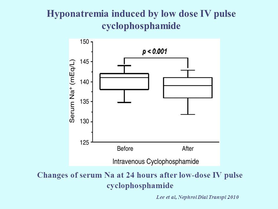 Hyponatremia induced by low dose IV pulse cyclophosphamide Lee et al, Nephrol Dial Transpl 2010 Changes of serum Na at 24 hours after low-dose IV puls
