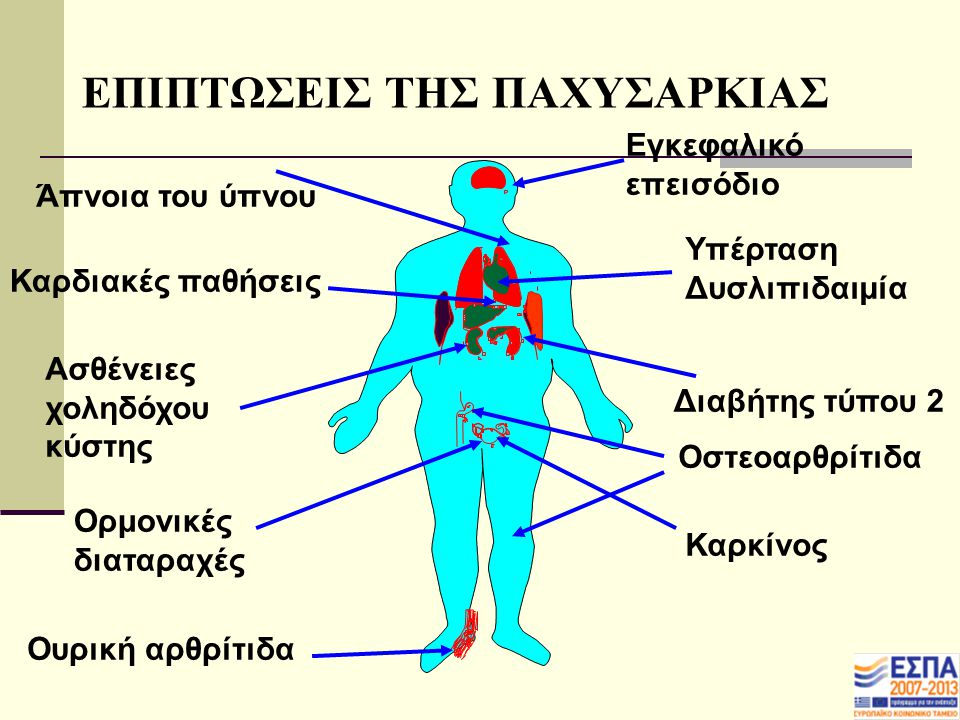 ΕΠΙΠΤΩΣΕΙΣ ΤΗΣ ΠΑΧΥΣΑΡΚΙΑΣ Υπέρταση Δυσλιπιδαιμία Άπνοια του ύπνου Καρδιακές παθήσεις Ασθένειες χοληδόχου κύστης Ορμονικές διαταραχές Ουρική αρθρίτιδα Εγκεφαλικό επεισόδιο Διαβήτης τύπου 2 Οστεοαρθρίτιδα Καρκίνος
