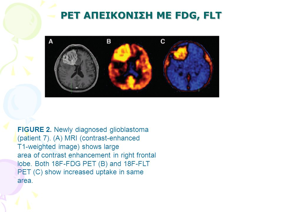 PET ΑΠΕΙΚΟΝΙΣΗ ΜΕ FDG, FLT FIGURE 2. Newly diagnosed glioblastoma (patient 7). (A) MRI (contrast-enhanced T1-weighted image) shows large area of contr