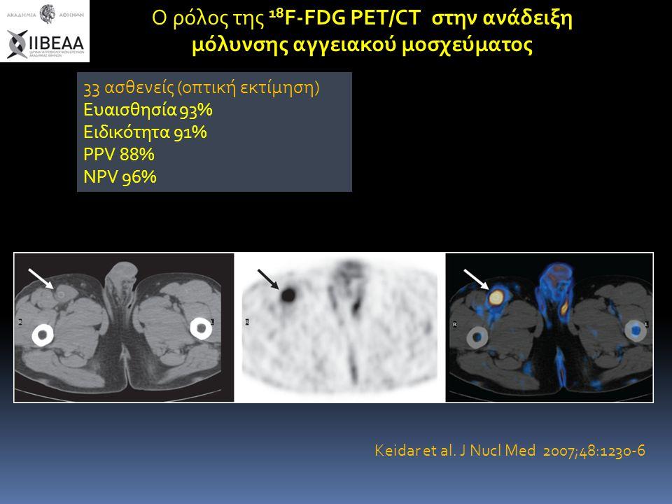 Ο ρόλος της 18 F-FDG PET/CT στην ανάδειξη μόλυνσης αγγειακού μοσχεύματος 33 ασθενείς (οπτική εκτίμηση) Ευαισθησία 93% Ειδικότητα 91% PPV 88% NPV 96% K