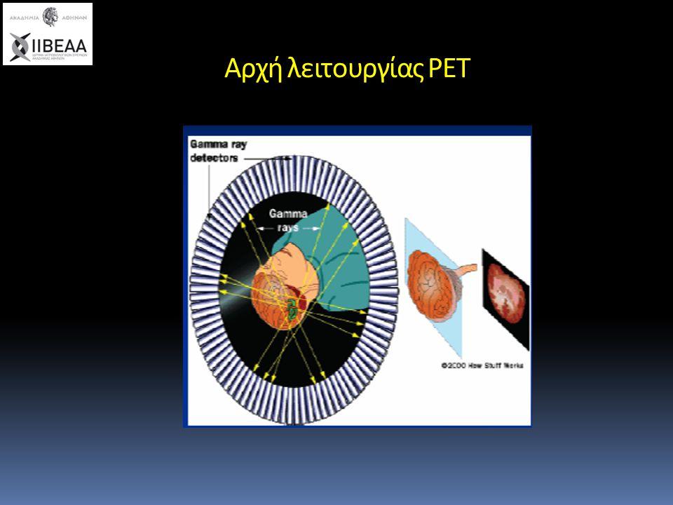 Πλεονεκτήματα της PET Πολύ καλή διακριτική ικανότητα Ολόσωμη απεικόνιση Γρήγορη ολοκλήρωση της μελέτης High target –to- background contrast ratios Υψηλή ευαισθησία σε χρόνιες μολύνσεις High interobserver agreement Χαμηλότερη ακτινοβόληση του ασθενή Βελτιώσεις με PET CT  Ανατομική ταυτοποίηση βλαβών  Αύξηση ευαισθησίας και ειδικότητας