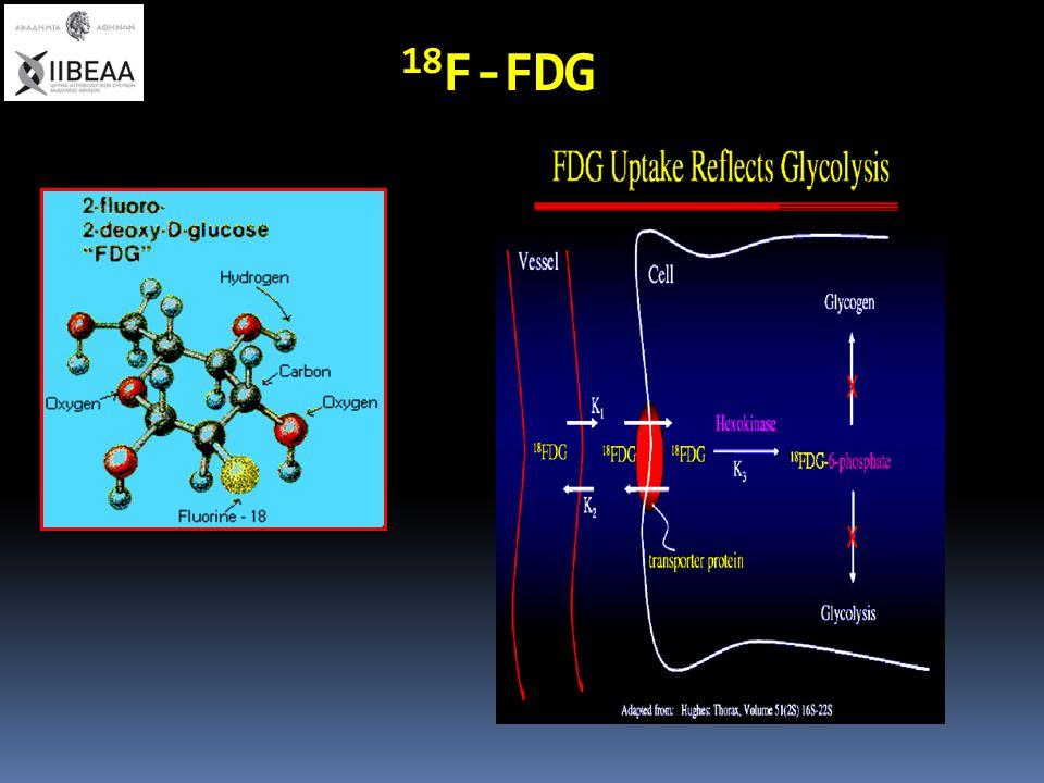 Ο ρόλος της 18 F-FDG PET/CT στην ανάδειξη μόλυνσης αγγειακού μοσχεύματος 25ασθενείς Ευαισθησία 93% Ειδικότητα 70% PPV 82% NPV 88% FDG PET analysis (four point scale) Grade 1: uptake ≤ background (-) Grade II: uptake ≤ soft tissue (-) Grade III: moderate uptake ≥ soft tissue (+) Grade IV: strong uptake comparable with bladder (+) Brukking et al.