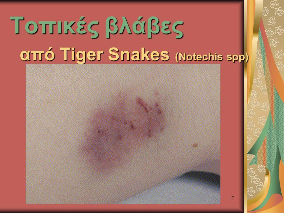 17 Τοπικές βλάβες από Tiger Snakes (Notechis spp)