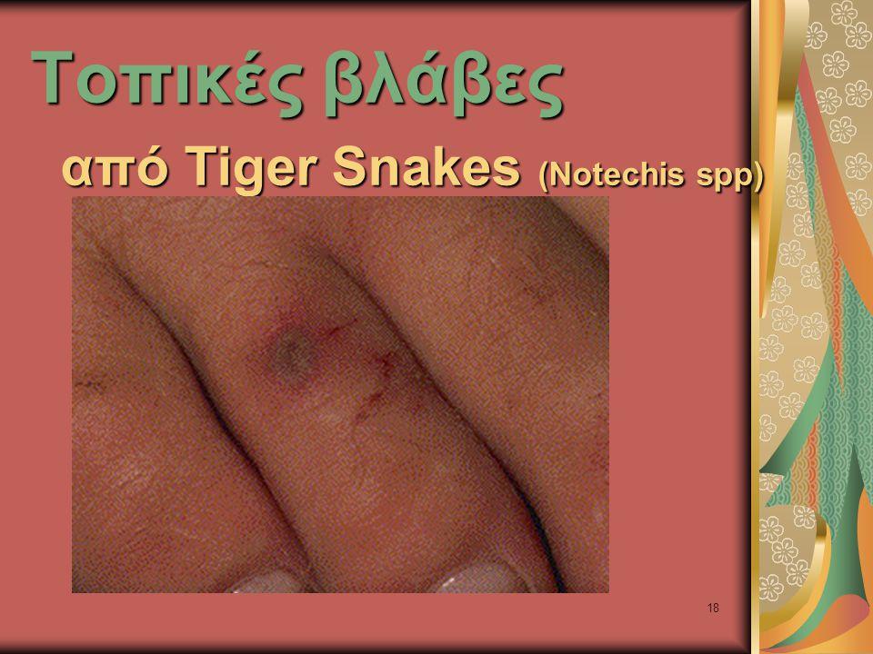 18 Τοπικές βλάβες από Tiger Snakes (Notechis spp)
