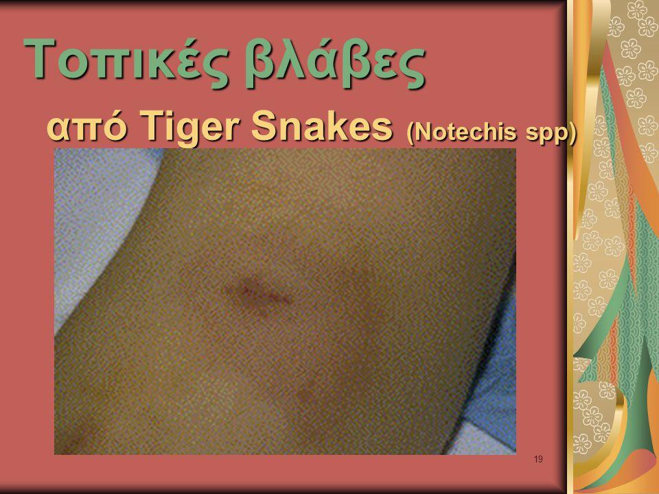 19 Τοπικές βλάβες από Tiger Snakes (Notechis spp)