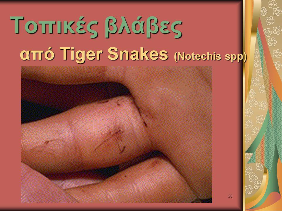 20 Τοπικές βλάβες από Tiger Snakes (Notechis spp)