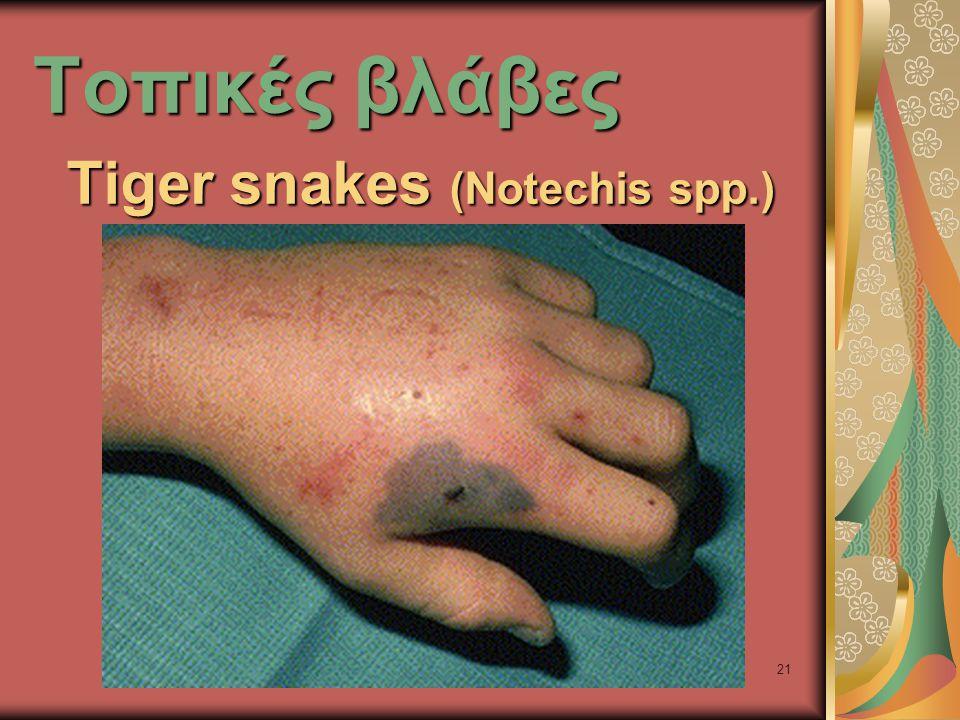 21 Τοπικές βλάβες Τiger snakes (Notechis spp.)