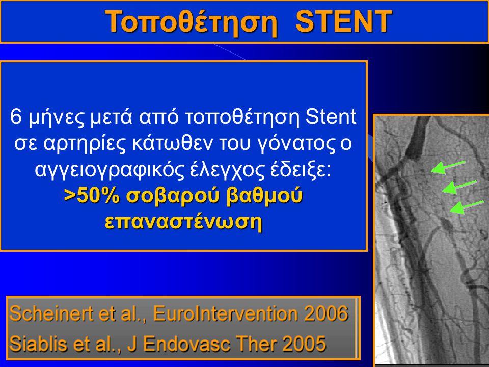 Τοποθέτηση STENT Τοποθέτηση STENT >50% σοβαρού βαθμού επαναστένωση 6 μήνες μετά από τοποθέτηση Stent σε αρτηρίες κάτωθεν του γόνατος ο αγγειογραφικός έλεγχος έδειξε: >50% σοβαρού βαθμού επαναστένωση