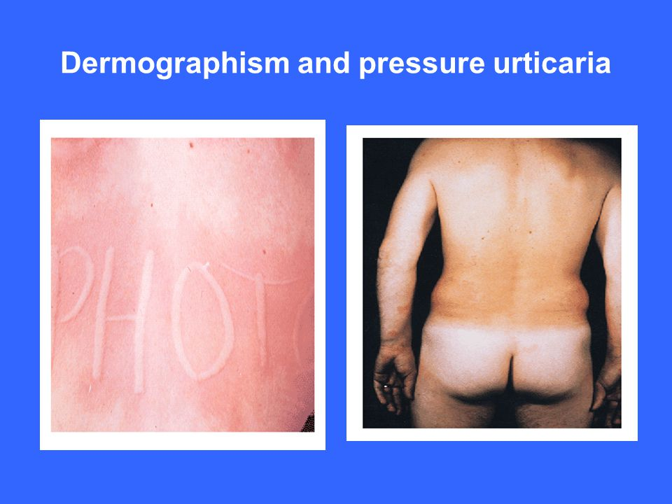 Dermographism and pressure urticaria