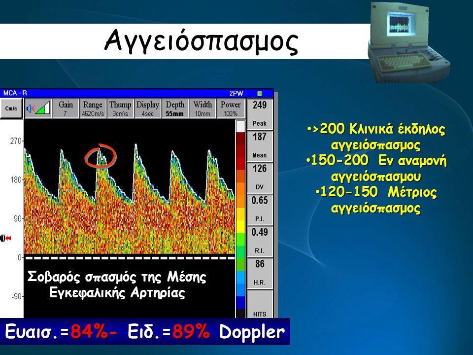Αγγειόσπασμος Σοβαρός σπασμός της Μέσης Εγκεφαλικής Αρτηρίας Ευαισ.=84%- Ειδ.=89% Doppler >200 Κλινικά έκδηλος αγγειόσπασμος >200 Κλινικά έκδηλος αγγε
