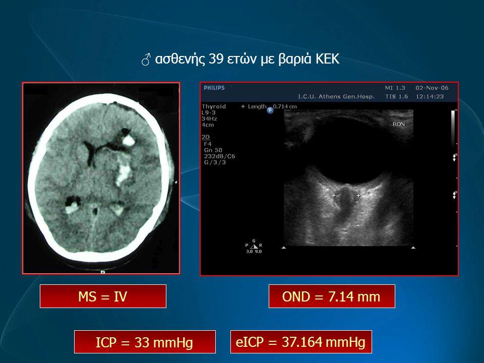 ♂ ασθενής 39 ετών με βαριά ΚΕΚ OND = 7.14 mm MS = IV eICP = 37.164 mmHg ICP = 33 mmHg