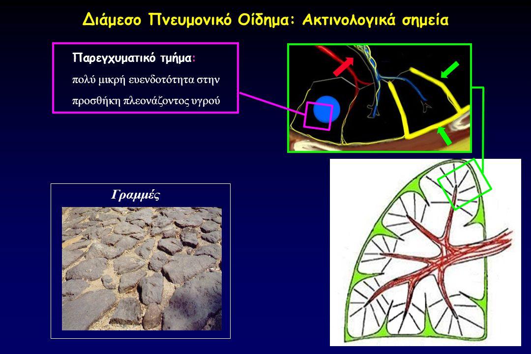 Διάμεσο Πνευμονικό Οίδημα: Ακτινολογικά σημεία Γραμμές Παρεγχυματικό τμήμα: πολύ μικρή ευενδοτότητα στην προσθήκη πλεονάζοντος υγρού