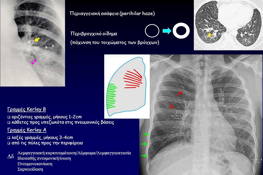 Περιβρογχικό οίδημα (πάχυνση του τοιχώματος των βρόγχων) Γραμμές Kerley B  οριζόντιες γραμμές, μήκους 1-2cm  κάθετες προς υπεζωκότα στις πνευμονικές