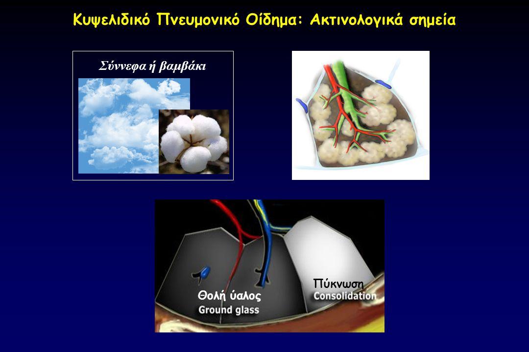 Σύννεφα ή βαμβάκι Πύκνωση Θολή ύαλος Κυψελιδικό Πνευμονικό Οίδημα: Ακτινολογικά σημεία