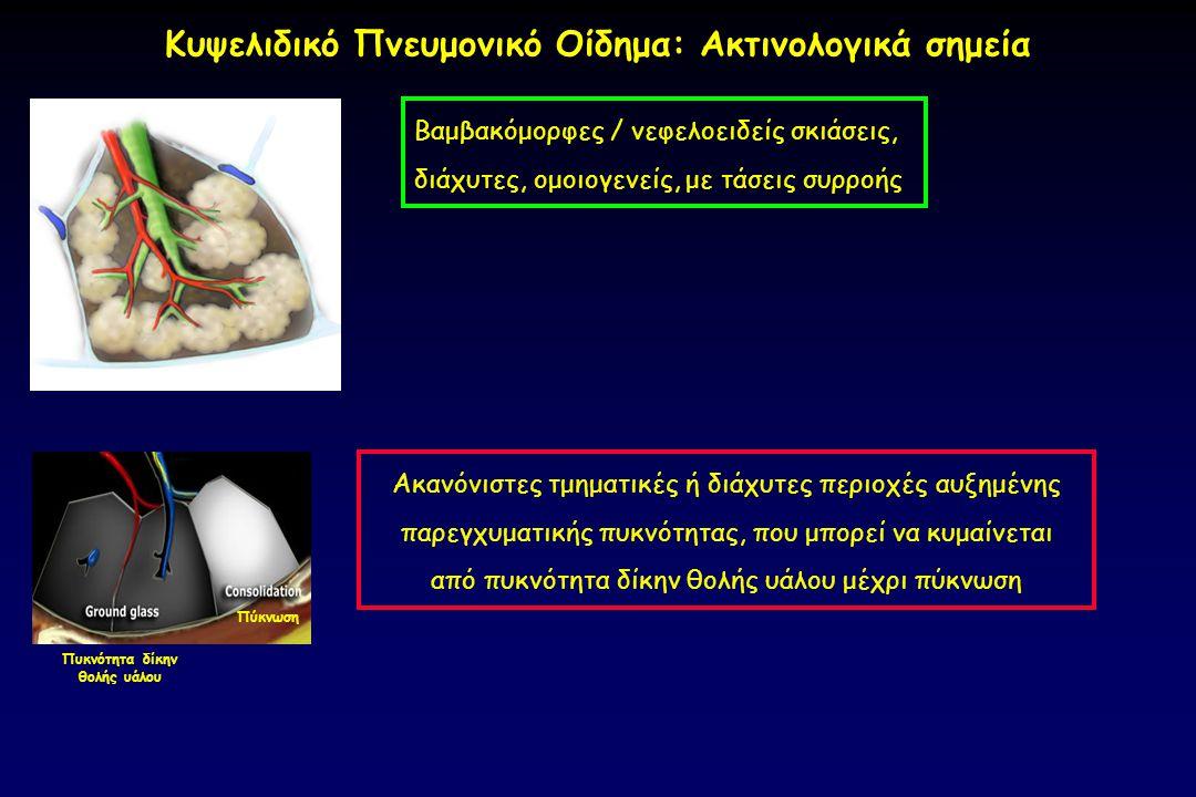 Πύκνωση Πυκνότητα δίκην θολής υάλου Κυψελιδικό Πνευμονικό Οίδημα: Ακτινολογικά σημεία Βαμβακόμορφες / νεφελοειδείς σκιάσεις, διάχυτες, ομοιογενείς, με