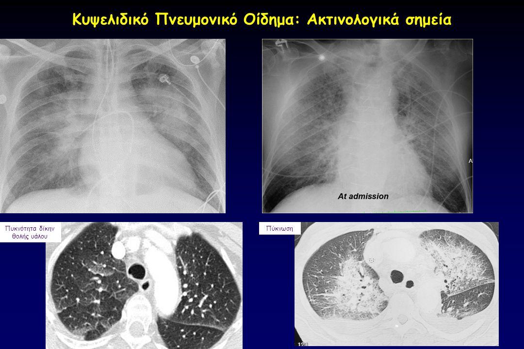 Κυψελιδικό Πνευμονικό Οίδημα: Ακτινολογικά σημεία Πυκνότητα δίκην θολής υάλου Πύκνωση