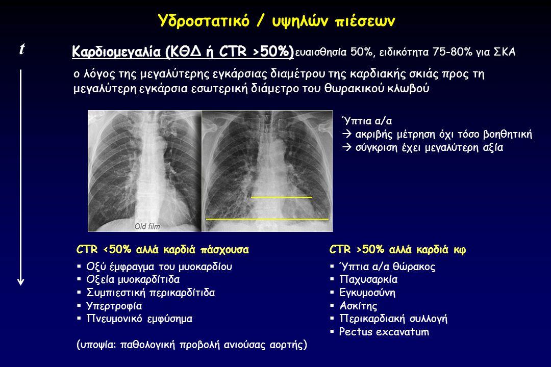 t ο λόγος της μεγαλύτερης εγκάρσιας διαμέτρου της καρδιακής σκιάς προς τη μεγαλύτερη εγκάρσια εσωτερική διάμετρο του θωρακικού κλωβού CTR >50% αλλά κα