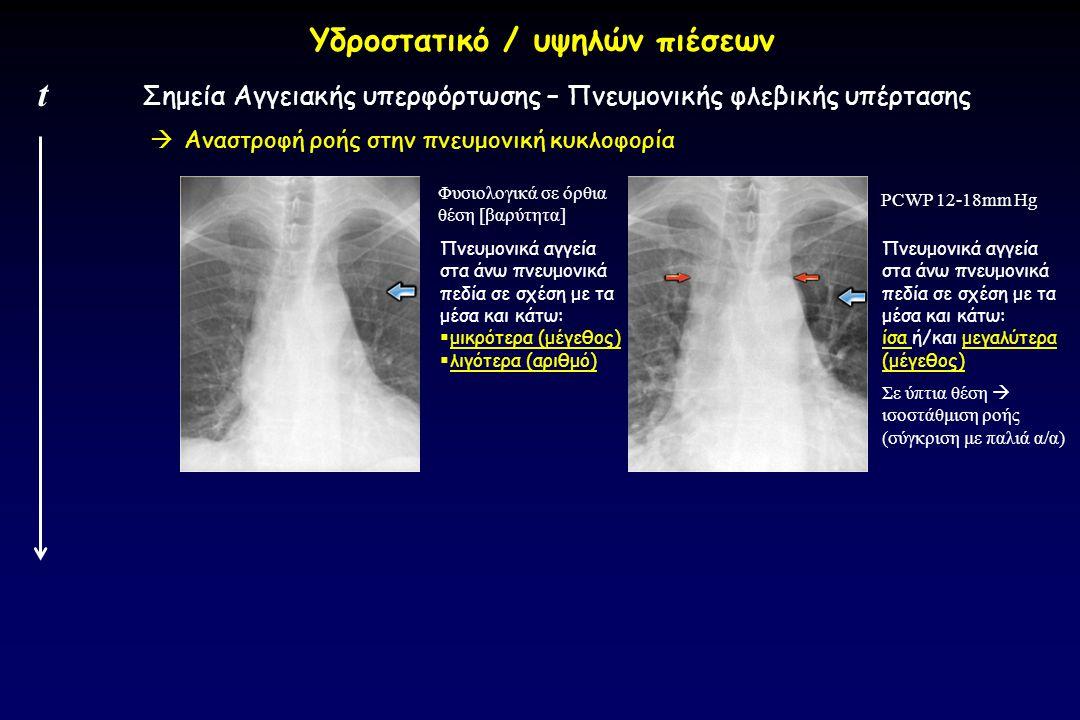  Αναστροφή ροής στην πνευμονική κυκλοφορία Σημεία Αγγειακής υπερφόρτωσης – Πνευμονικής φλεβικής υπέρτασης t Υδροστατικό / υψηλών πιέσεων Φυσιολογικά