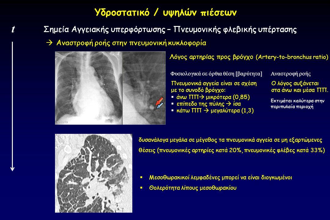  Αναστροφή ροής στην πνευμονική κυκλοφορία Σημεία Αγγειακής υπερφόρτωσης – Πνευμονικής φλεβικής υπέρτασης t Υδροστατικό / υψηλών πιέσεων Λόγος αρτηρί