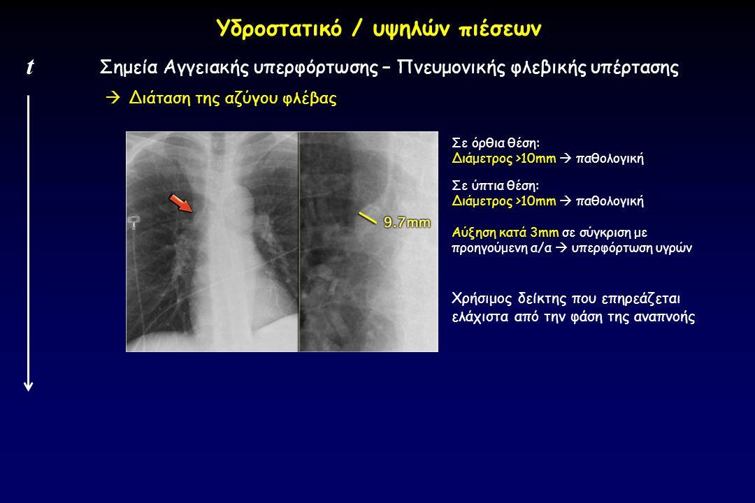  Διάταση της αζύγου φλέβας Σημεία Αγγειακής υπερφόρτωσης – Πνευμονικής φλεβικής υπέρτασης t Υδροστατικό / υψηλών πιέσεων Σε όρθια θέση: Διάμετρος >10