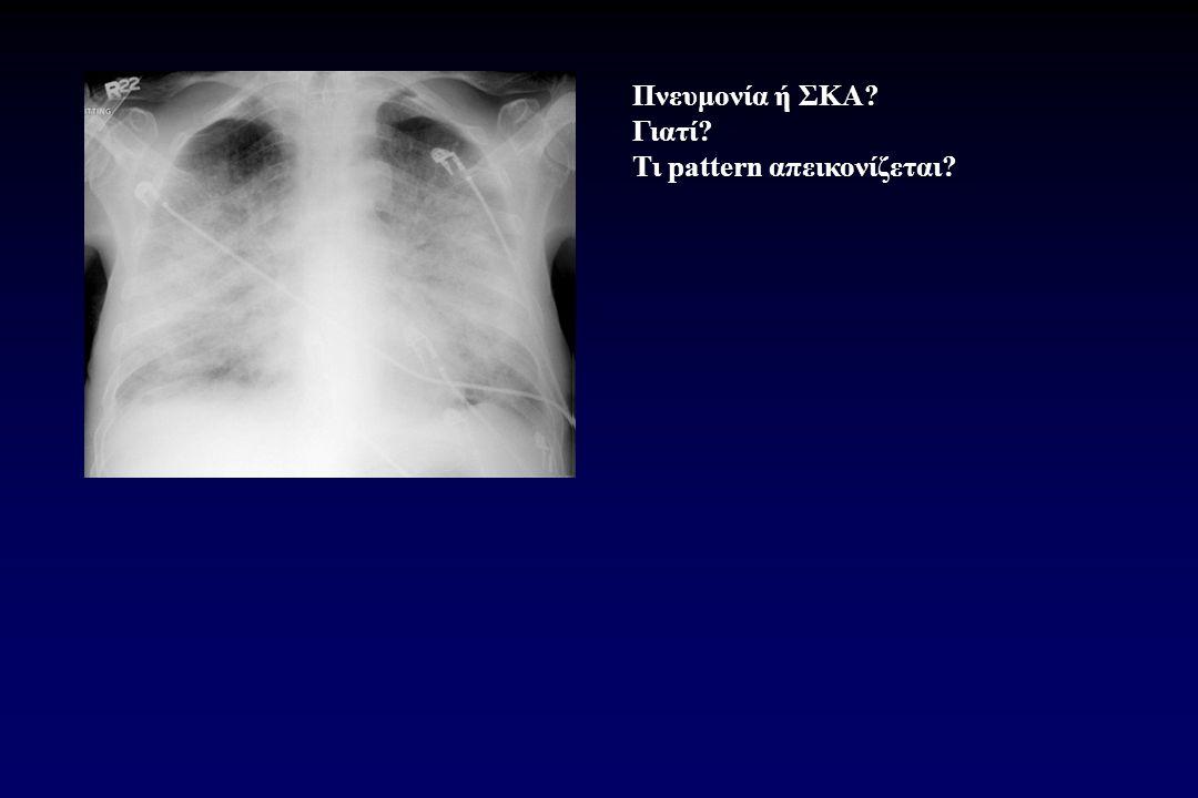 Πνευμονία ή ΣΚΑ? Γιατί? Τι pattern απεικονίζεται?