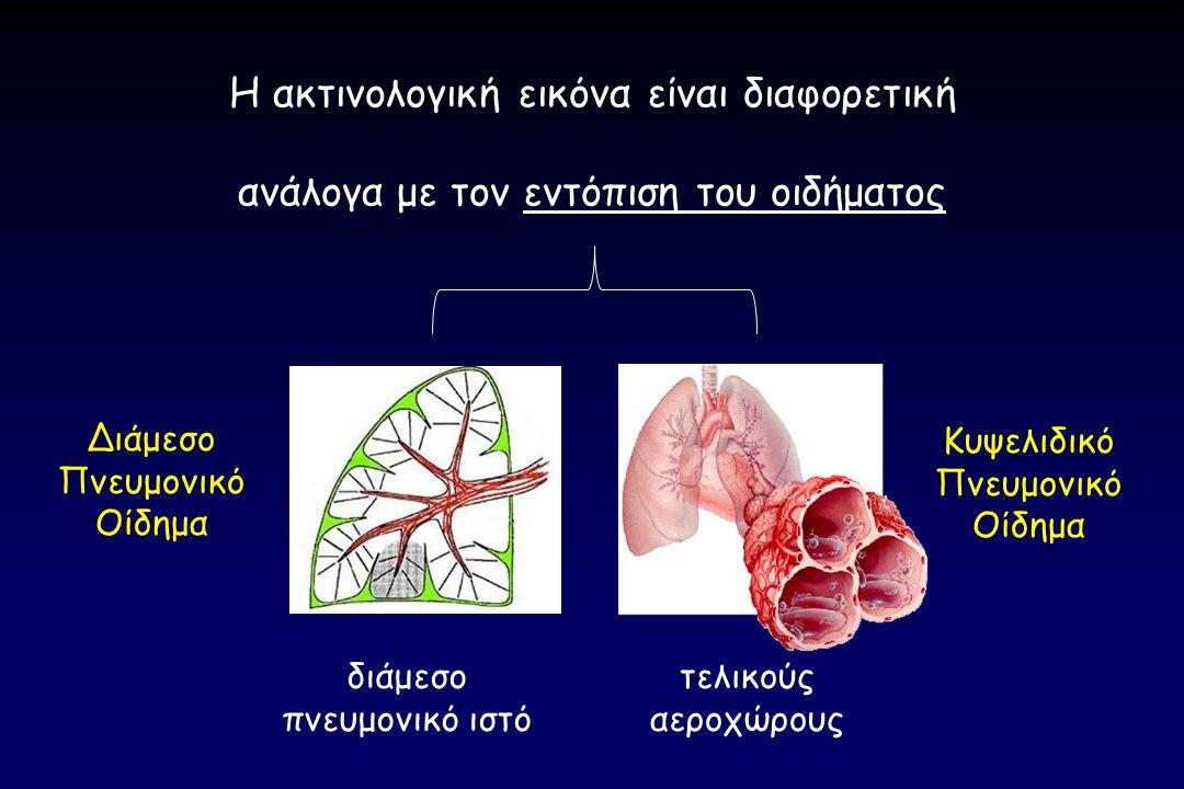 τελικούς αεροχώρους διάμεσο πνευμονικό ιστό Διάμεσο Πνευμονικό Οίδημα Κυψελιδικό Πνευμονικό Οίδημα Η ακτινολογική εικόνα είναι διαφορετική ανάλογα με