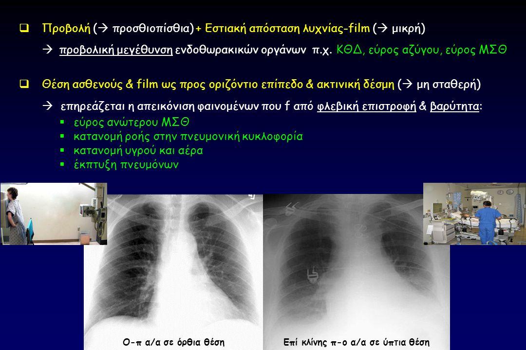  Προβολή (  προσθιοπίσθια) + Εστιακή απόσταση λυχνίας-film (  μικρή)  προβολική μεγέθυνση ενδοθωρακικών οργάνων π.χ. ΚΘΔ, εύρος αζύγου, εύρος ΜΣΘ