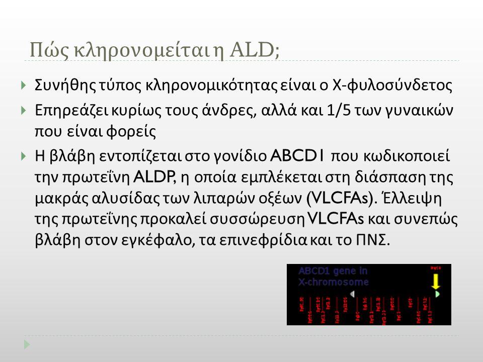 Πώς κληρονομείται η ALD;  Συνήθης τύπος κληρονομικότητας είναι ο Χ - φυλοσύνδετος  Επηρεάζει κυρίως τους άνδρες, αλλά και 1/5 των γυναικών που είναι
