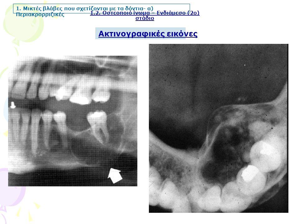Ακτινογραφικές εικόνες 1.2. Οστεοποιό ίνωμα – Ενδιάμεσο (2ο) στάδιο 1. Μικτές βλάβες που σχετίζονται με τα δόντια- α) Περιακρορριζικές